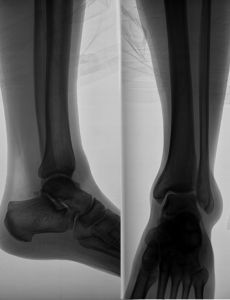 1002813_x-ray_image_of_the_leg